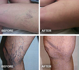 Before and after photos of Sclerotherapy treatments