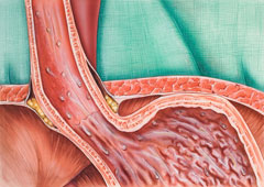 Medical illustration of heartburn